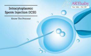 successful pregnancy with ICSI