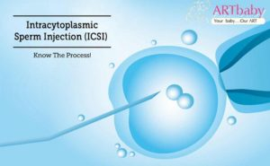 successful pregnancy with ICSI